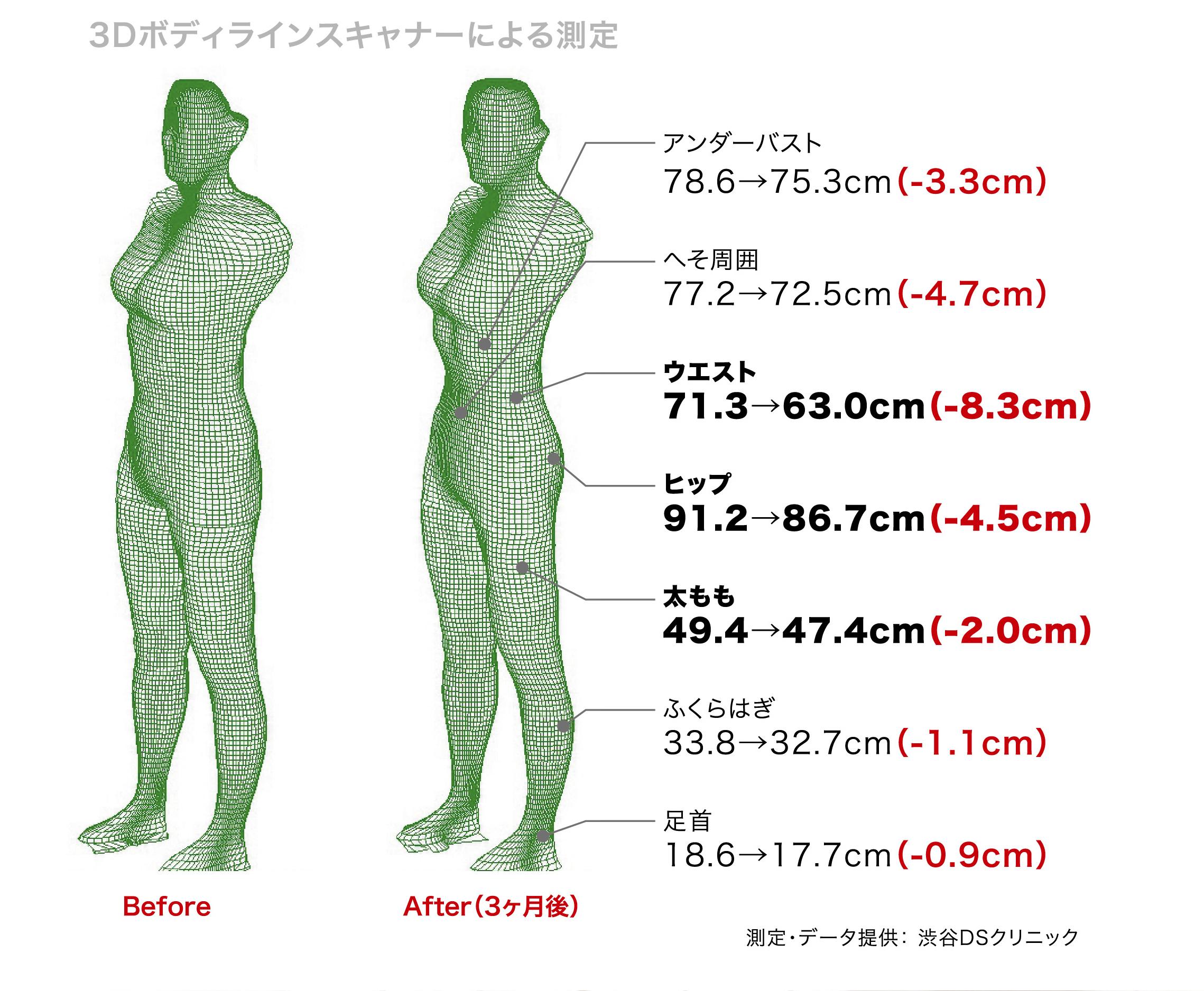 XBODY Result Size